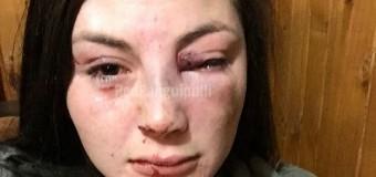 Joven sufre impactante agresión por sujeto que intentó robarle su celular en Coñaripe